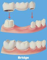 جسر الأسنان