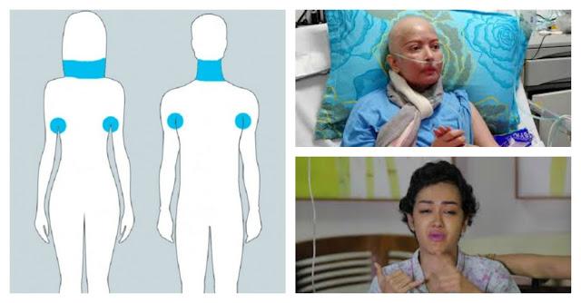 Lebih Baik Mencegah Daripada Mengobati !! Kenalilah Gejala Awal Kanker Pada Tubuh .... INI Sering Di Remehkan....