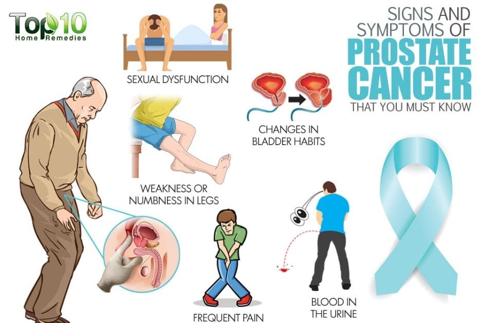 What Are Symptoms of Prostate Cancer Spreading