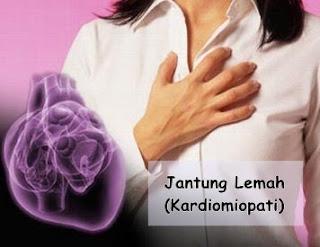 cara menyembuhkan jantung lemah
