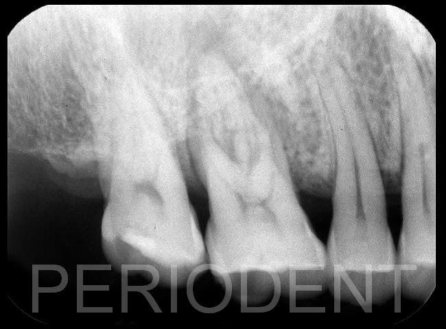 P E R I O D E N T = P E R I O + I M P L A N T: 陳柏堅醫師發表右上第一大臼齒嚴重牙周病拔除後補骨植牙-1