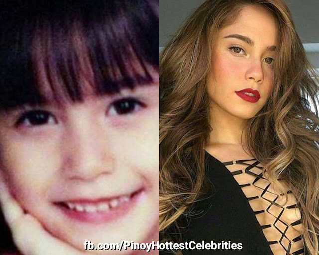 LOOK: 10 Of Pinoy's Hottest Celebrities Then And Now Photos! #5 And #9 Transformations Were Surprising!