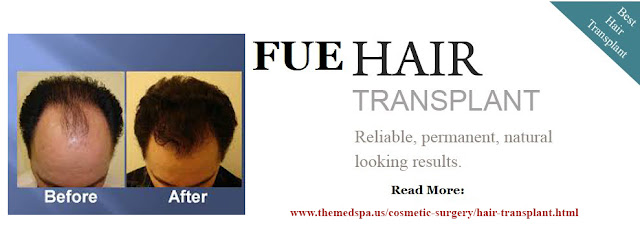 hair transplant surgery cost in delhi