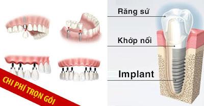 trồng răng implant trọn gói