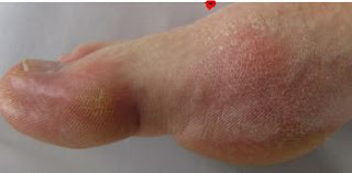 سبب النقرس وعلاجه – تورم ووجع اصبع القدم الكبير والمرفق