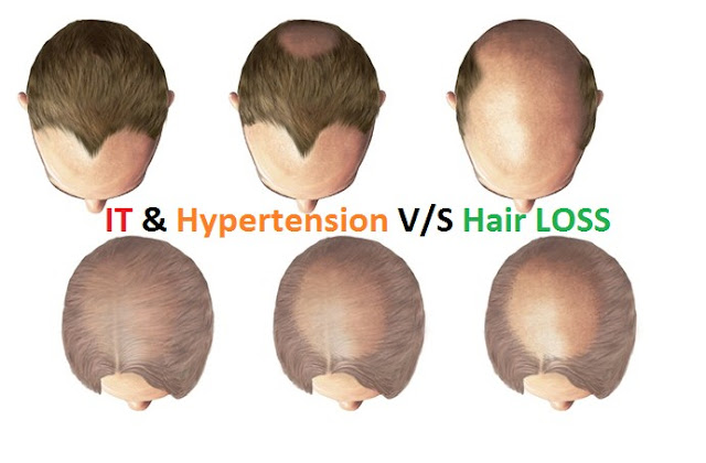 How IT Professionals with Hair Loss suffer from Hypertension