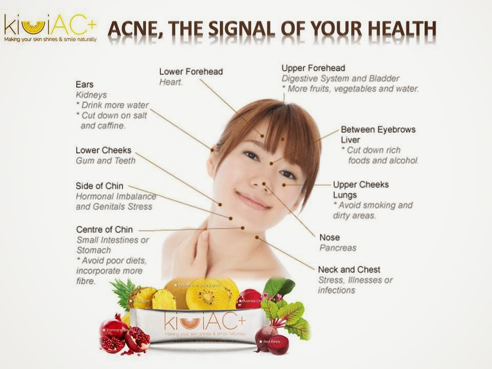 Natural Products For Hormonal Acne