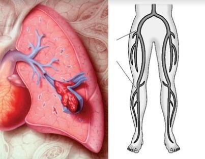Pulmoner Emboli (Akciğer Pıhtı Atması) Nedir?