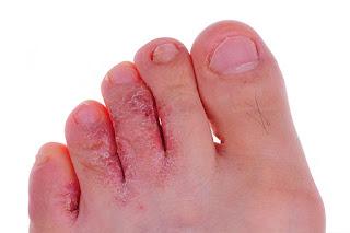 Jamur kaki atau yang disebut juga kutu air RAMUAN ALAMI MENGATASI KUTU AIR