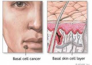 علاج اوروبي واعد للقضاء على السرطان