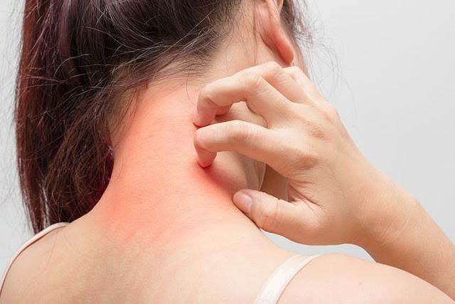 Atopowe Zapalenie Skóry (AZS) – przyczyny, objawy, leczenie