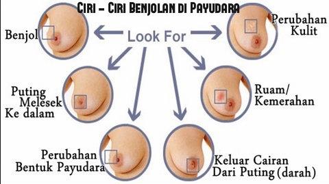 Ciri umum kanker payudara