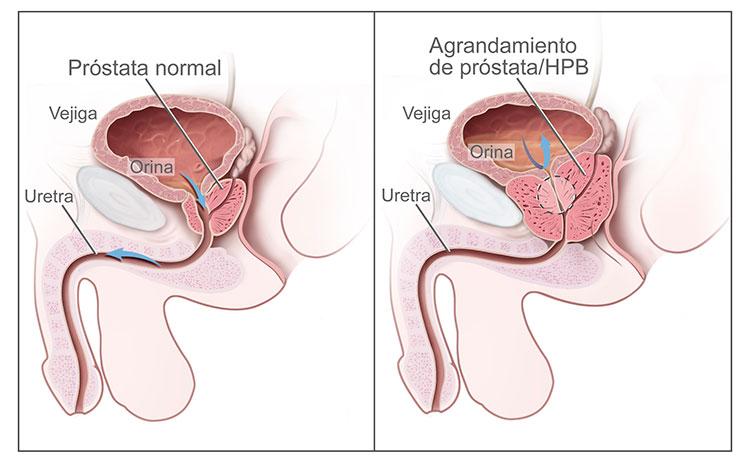 cáncer de próstata hipotensorial