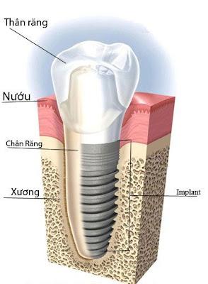 rang-su-implant