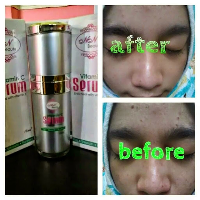 Testimoni Serum Vitamin C NN Beauty