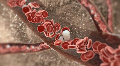 Cara Mengatasi Kekurangan Sel Darah Putih