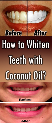 How to Whiten Teeth with Coconut Oil? #HealthMedical