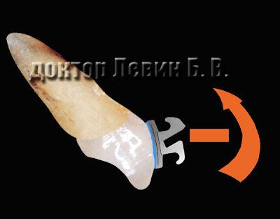 Биомеханика нормализации торка зубов