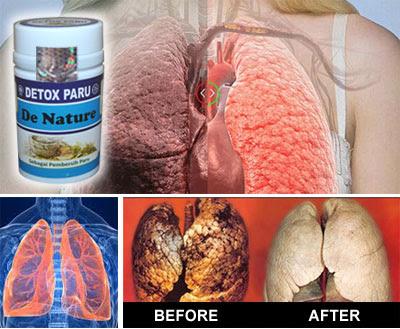 Image result for Obat tbc denature