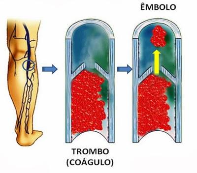 A trombose é causada pela formação de um coágulo dentro da veia.