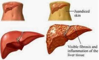 Liver disease health natural remedies