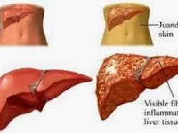 Liver disease health natural remedies at home
