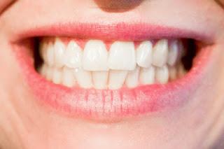 Tips Memutihkan Gigi Dengan Cepat Menggunakan Bahan Alami
