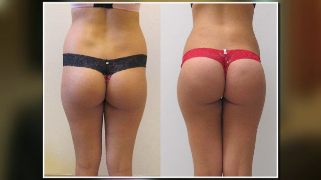 butt-lift-before-after