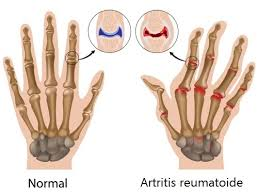 how does arthritis look like