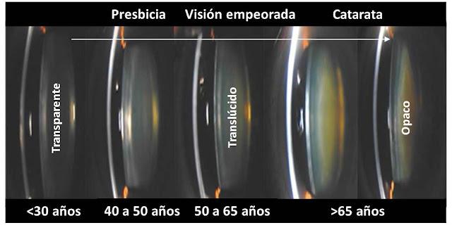 Opacificación: de un cristalino claro a una catarata