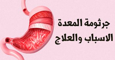 جرثومة المعدة اعراضها وطرق الوقاية و العلاج منها