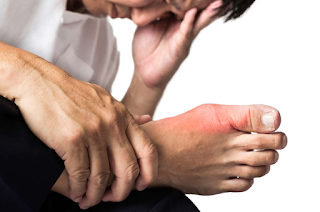 Uric Acid pain in Young Age, This Cause