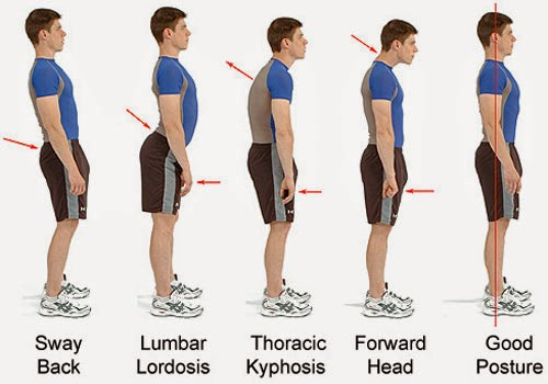 5 Postur Tubuh Ini Buruk Bagi Kesehatan