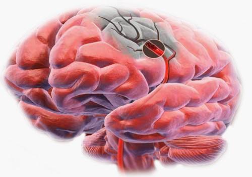 Diagnóstico de la Enfermedad cerebrovascular