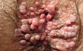Obat Tradisional Penyakit Condyloma Akuminata Di Vagina