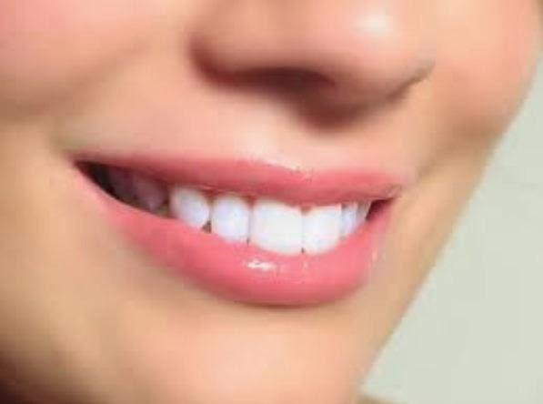 Kepribadian Perempuan di Balik Bentuk Gigi