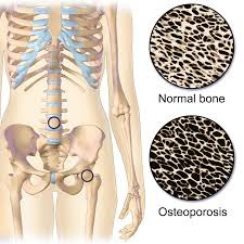 Osteoporosis-Causes, Symptoms, Prevention, Treatment