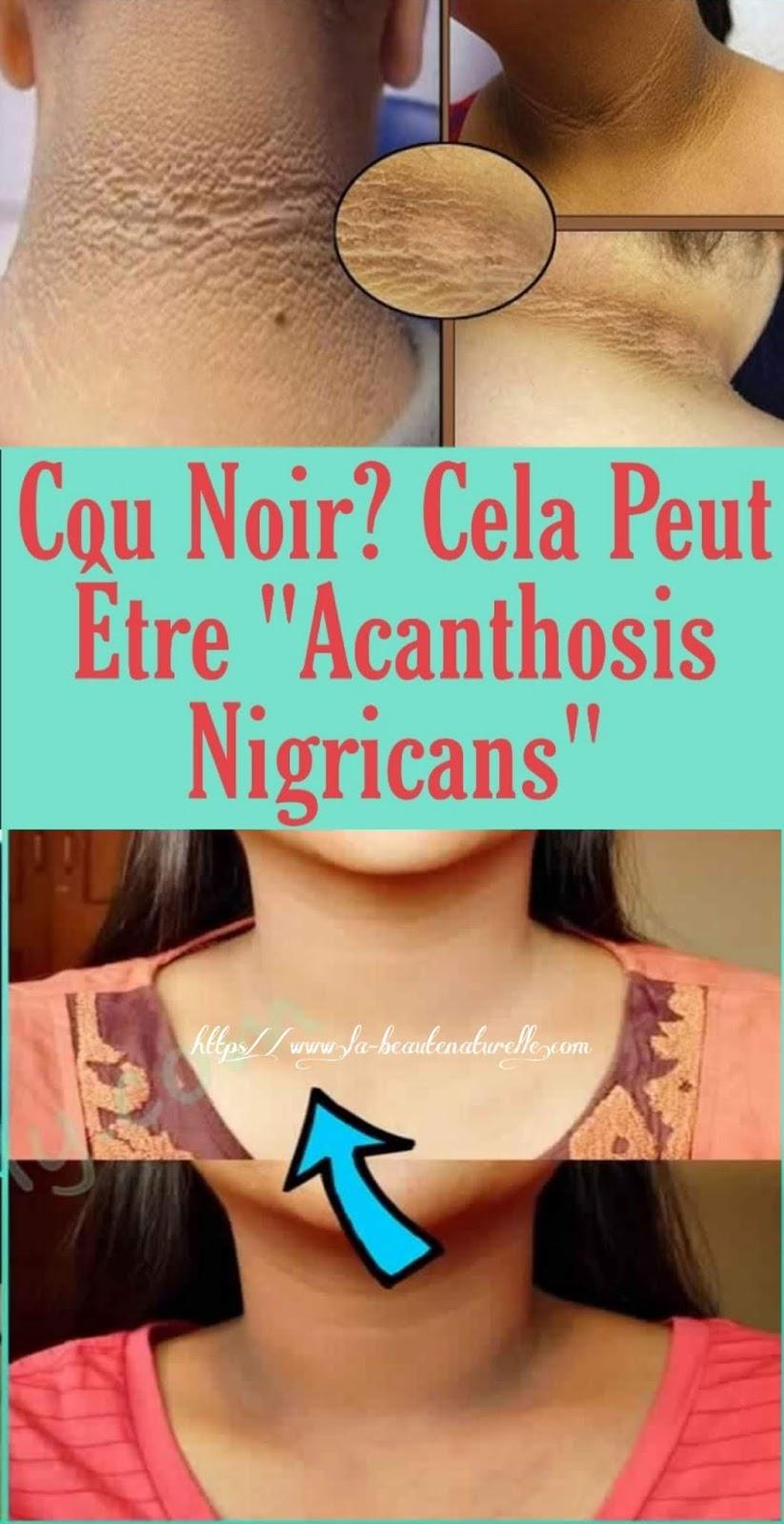 """Cou Noir? Cela Peut Être """"Acanthosis Nigricans"""""""