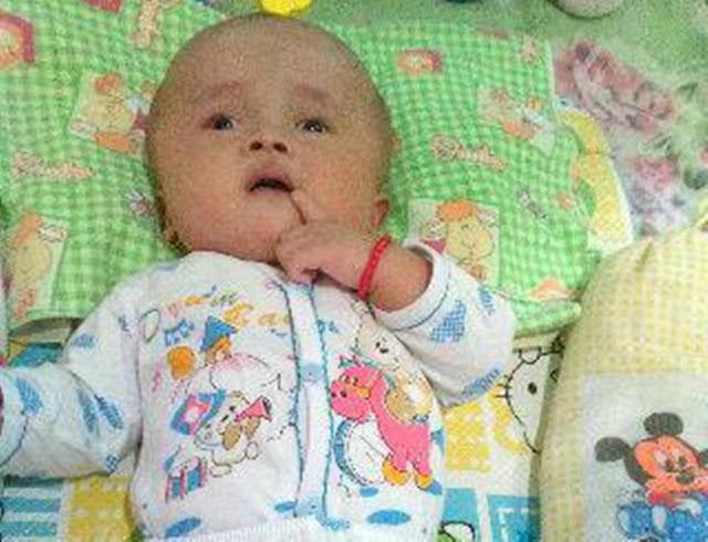 Mari Bantu Putri Aktivis IPPNU Penderita Hidrocephalus Ini