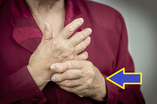 Remedios Caseros para la Psoriasis Artritica