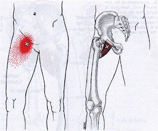 Dor na virilha, Dor no quadril - Músculo Pectíneo
