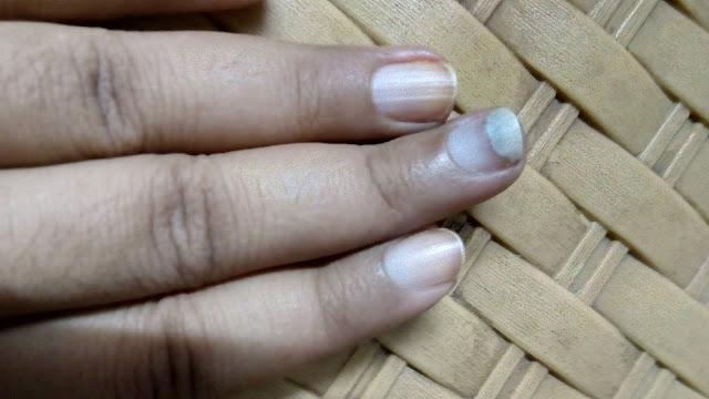 onycholysis affected nail damaged by myglamm nail polish