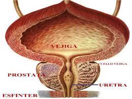 significa próstata fibrosa