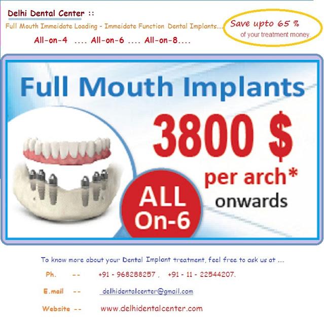 Best Implant Dentist Near Me: Full Mouth Dental Implants India