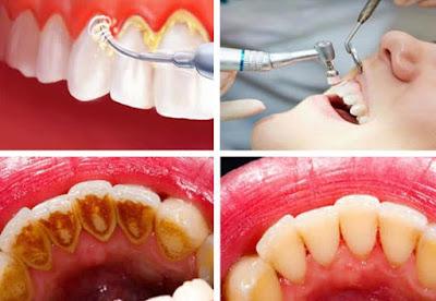 Ini Cara Mudah Menghilangkan Karang Gigi yang Membandel dengan Cepat, Alami, Murah, dan Tanpa Rasa Sakit
