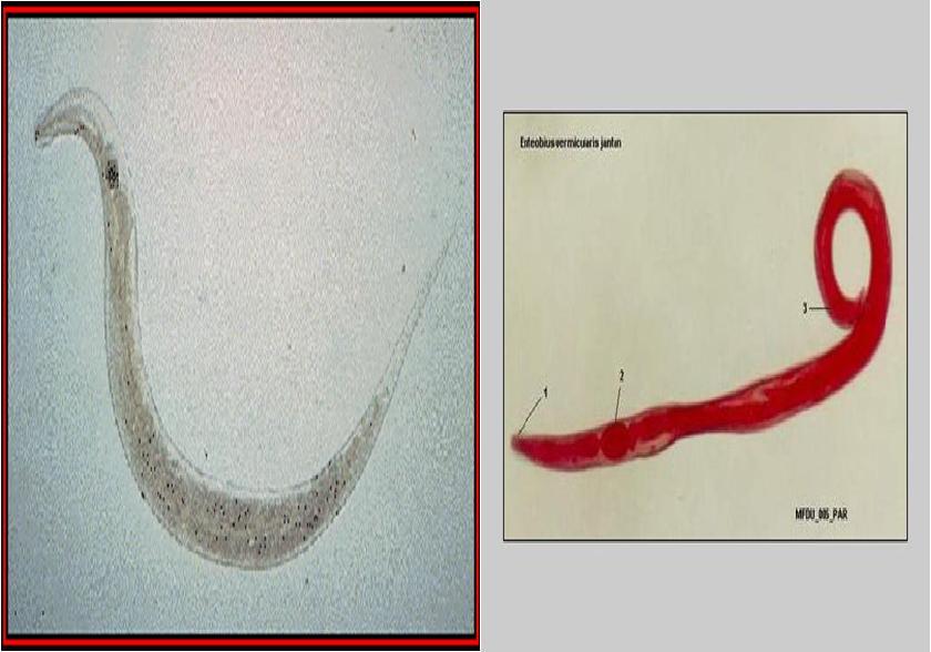 enterobius vermicularis nome popular le papillomavirus fatigue t il