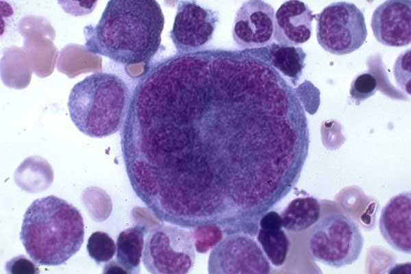 Hematology-Hemopoiesis Flashcards | Quizlet |Megakaryocyte Maturation