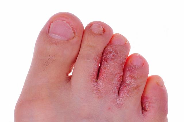 Imagen de dedos con pie de atleta