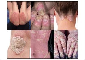 Cara cepat Menyembuhkan penyakit kulit PSORIASIS