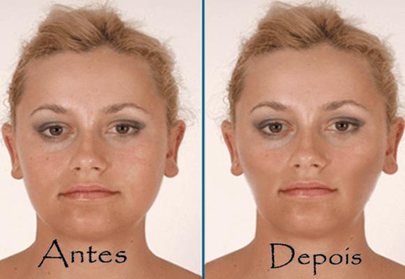 Bichectomia-antes-e-depois